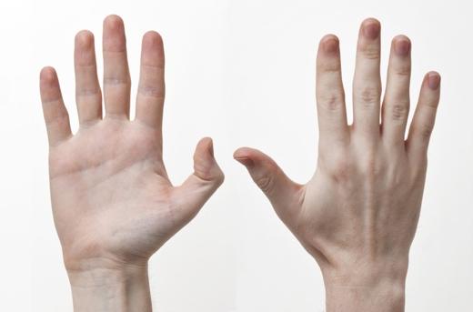 Bàn tay không có sự chênh lệch nhiều giữa độ dài của các ngón tay (Ảnh: Internet)