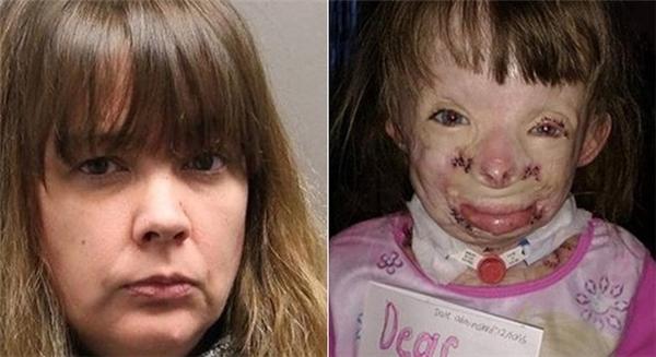 Tình nguyện viên gây phẫn nộ vì ăn cắp tiền của bé gái khốn khổ