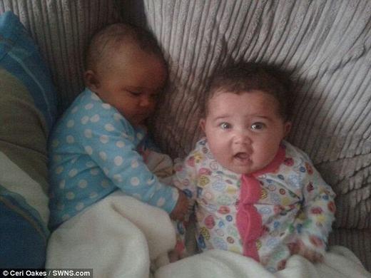 """Hai bé sinh đôi """"hiếm"""" nhất thế giới. (Ảnh: Cerl Oakes)"""