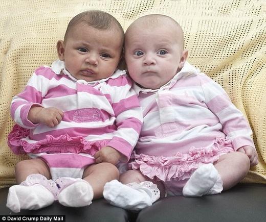 Những ca sinh đôi khác bố khá khiếm. (Ảnh minh họa. Nguồn: Internet)