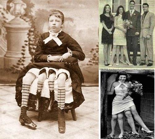 Myrtle Corbin được biết đến với danh hiệu cô gái bốn chân. Nếu nhìn qua chỉ như có một người khác đang đứng sau cô nàng.