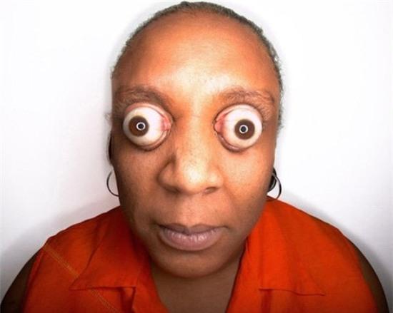 """Người phụ nữ đến từ Mỹ, Kim Goodman sở hữu đôi mắt """"bóng bàn"""" lồi ra khỏi hốc mắt khoảng 1,2 cm."""