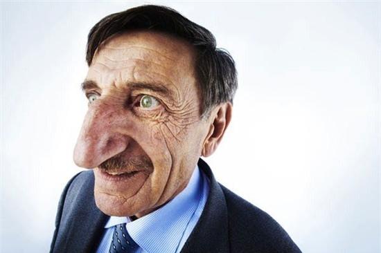 Chiếc mũi to và dài nhất thuộc về Mehmet Ozyurek