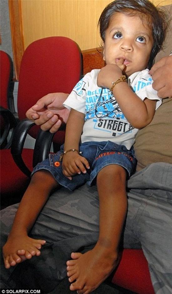 Akshat Saxena, người Ấn Độ, là người có nhiều ngón tay và chân nhất thế giới với tổng cộng 34 ngón, trong đó mỗi bàn tay có 7 ngón còn mỗi bàn chân có 10 ngón.