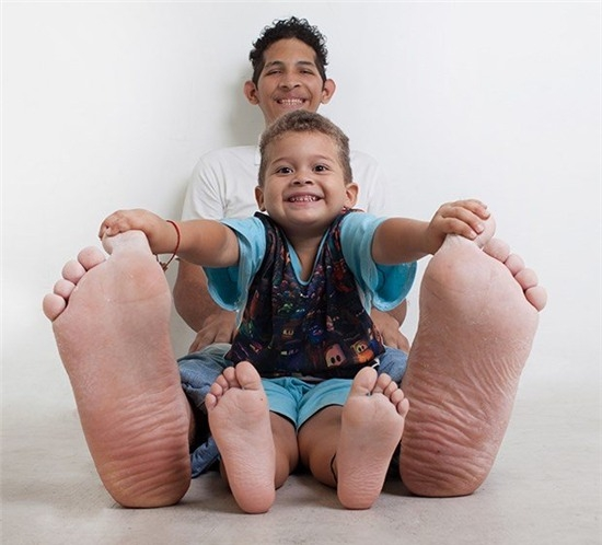 Jeison Orlando Rodriguez Hernandez mang quốc tịch Venezuela được công nhận là người đàn ông có bàn chân lớn nhất thế giới. Bàn chân phải của anh dài 40,1 cm còn chân trái nhỏ hơn một chút, 39,6 cm.