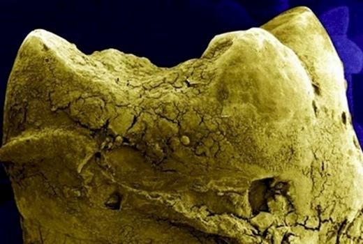 Bạn đang được chiêm ngưỡng một miếng xương sau khi các nhà khảo cổ khai quật ư? Không phải đâu, men răng đấy! (Ảnh: Internet)