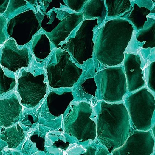 Tế bào mỡ dưới kính hiển vi không khác gì tổ ong. Nếu bạn béo lên, các khoảng trống này sẽ dần bị lấp đầy. (Ảnh: Internet)