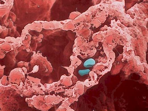 Các túi khí trong phế nang phổi – nơi diễn ra quá trình trao đổi khí và máu. (Ảnh: Internet)