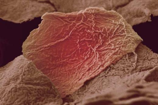 Còn đây là một tế bào da khi bị bỏng. (Ảnh: Internet)