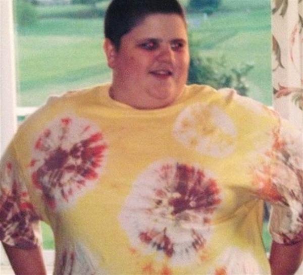 Cân nặng đỉnh điểm của cậu lên đến 147kg. (Ảnh: Internet)