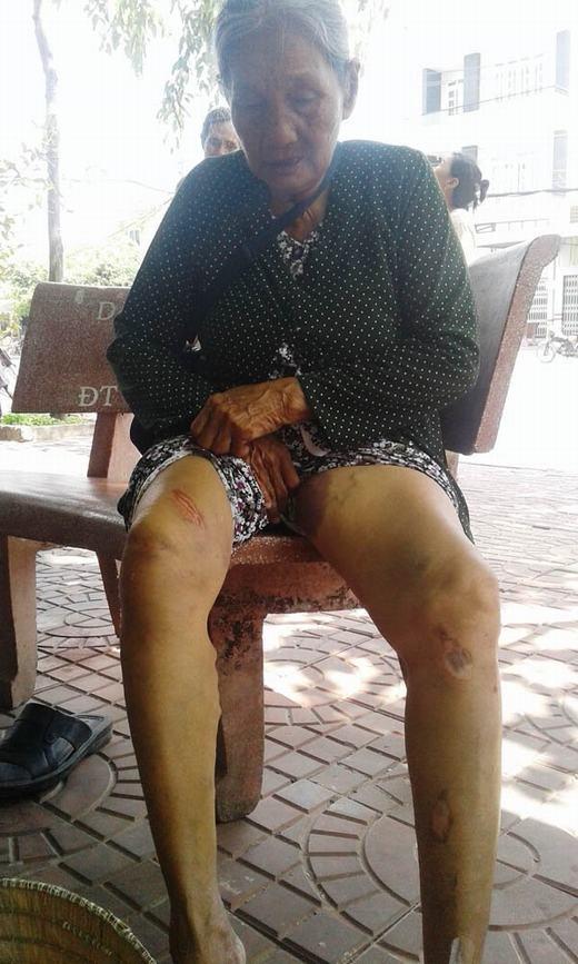 Bà Huệ bị thương nhiều nơi trên cơ thể do bị tên cướp kéo lê.