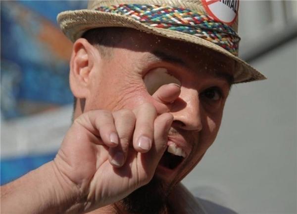 Người đàn ông này sống sót sau ung thư nhưng nhãn cầu của ông đã mất hoàn toàn. (Ảnh: Owen41i)