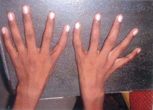 Hiện tượng ngón tay cái biến thành ngón trỏ. (Ảnh: Internet)