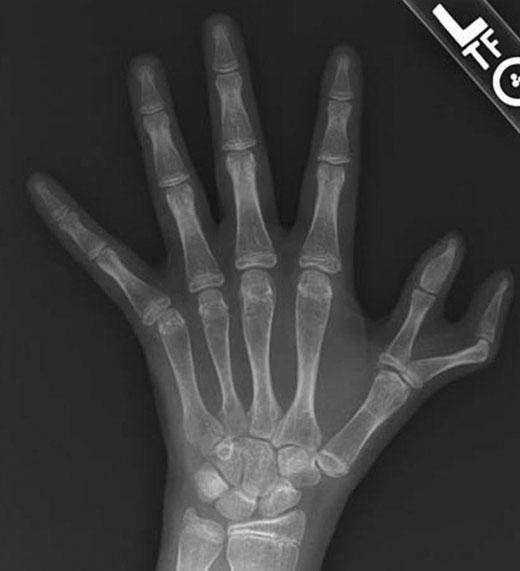 Một trường hợp khác của hiện tượng ngón tay thừa đốt. (Ảnh: Internet)