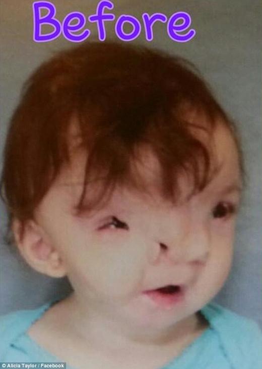 Trước khi được phẫu thuật, tầm nhìn của bé hầu như không giống người bình thường. (Ảnh: Internet)