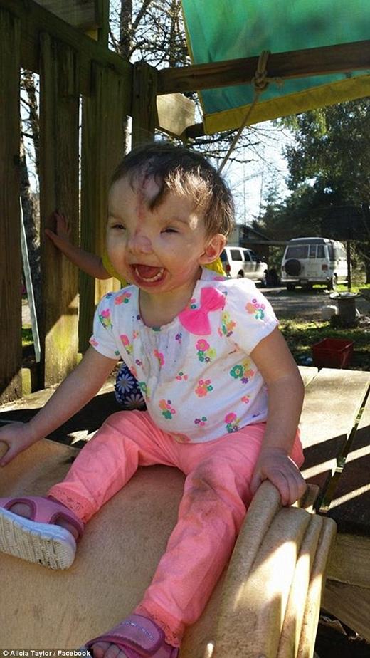 Nhưng sau khi hồi phục sức khỏe, Violet lúc nào cũng tươi cươi rạng rỡ. (Ảnh: Internet)