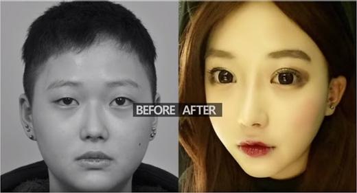 Cô cắt mắt để có được đôi mắt hai mí to tròn. (Ảnh: ID Hospital)