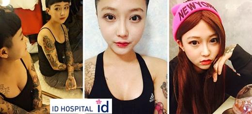 2 tuần sau phẫu thuật, có thể thấy khuôn mặt không bị sưng phù và vòng một đầy đặn hơn nhiều. (Ảnh: ID Hospital)