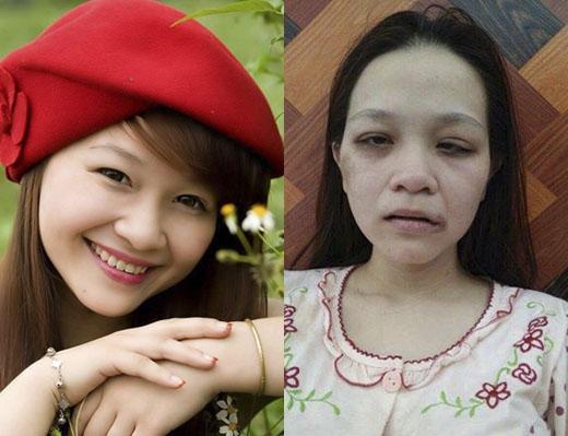 Hình ảnh thay đổi hoàn toàn của cô gái 9x khi bị chồng đánh đập