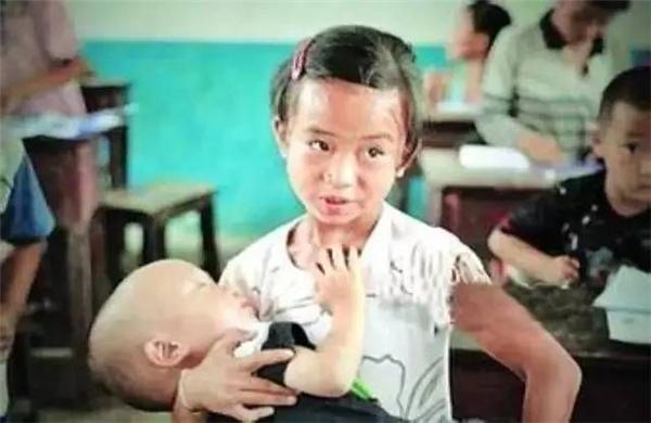 Cô bé ôm đứa em thiếu dinh dưỡng vào lòng. (Ảnh: Internet)
