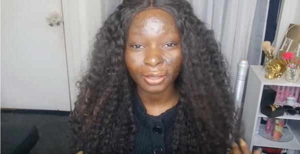Cận cảnh gương mặt với làn da nhiều sẹo do tai nạn để lại.