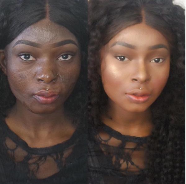 Đến với thế giới trang điểm chính là cách để cô che giấu những vết sẹo trên khuôn mặt, tự tin và cảm thấy xinh đẹp hơn. Thậm chí không chỉ dừng lại ở việc trang điểm cho riêng mình, Shalom Nchom còn trở thành một chuyên gia trang điểm chia sẻ rất nhiều phương pháp để giúp các chị em tự tin hơn với nhan sắc của mình.