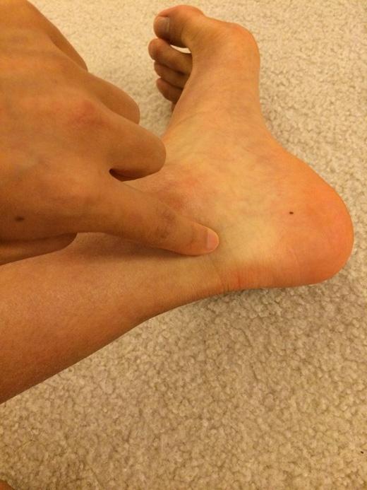 Quanh mắt cá chân: nốt ruồi nằm ở vị trí này khó phát hiện nhưng đây lại là nốt ruồi duyên của bạn, chỉ một thoáng hờ hững để lộ ra một tí, đối phương đã không thể rời mắt. Bạn cần tận dụng lợi thế này để diện những chiếc váy ngắn và đi sandal để lộ mắt cá. (Ảnh: Internet)