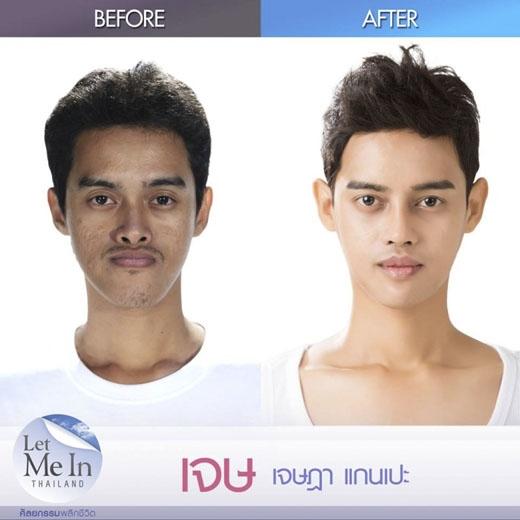 Jay trước và sau khi thẩm mỹ