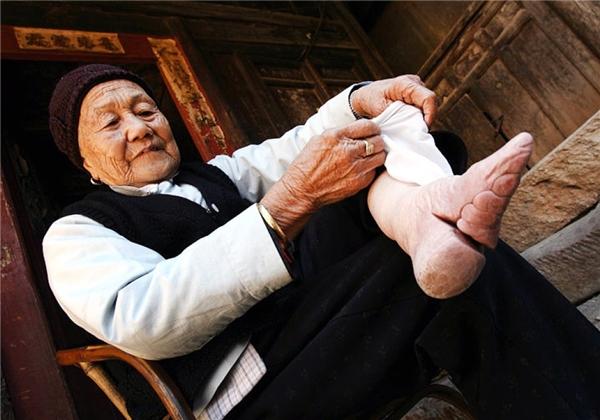 Khi cởi giày ra, đôi chân trần của cụ chỉ dài vỏn vẹn chừng hơn 10 xen-ti-mét và vô cùng dị dạng. (Ảnh: Internet)