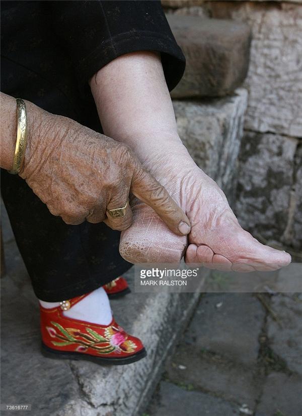Sau khi bó chân, chẳng những ngón chân mà cả gót củng gập lại. (Ảnh: Internet)