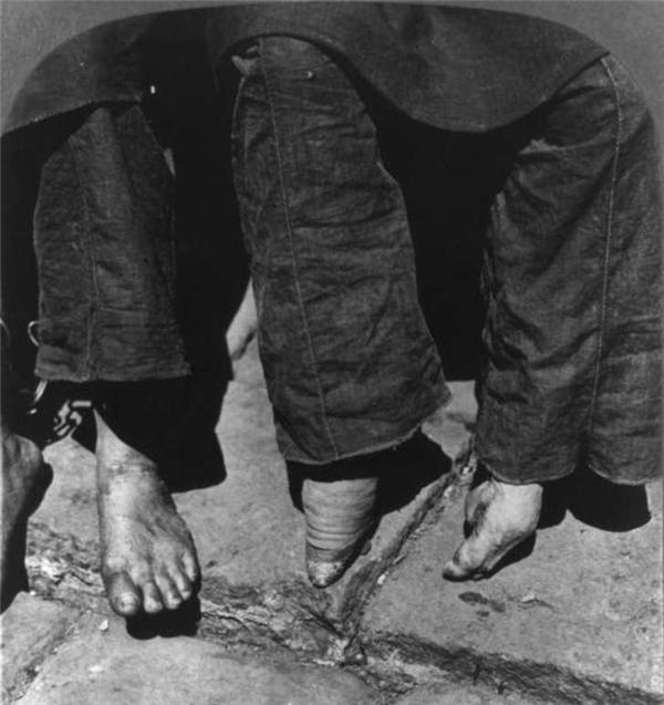 Chân bị bó cạnh một bàn chân khác nguyên vẹn bình thường. (Ảnh: Internet)