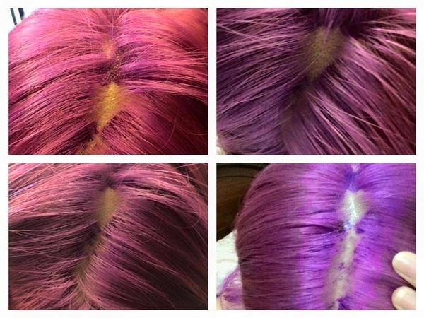 Những hình ảnh khủng khiếp về tình trạng tóc và da đầu sau khi tẩy tóc được K.N chia sẻ.