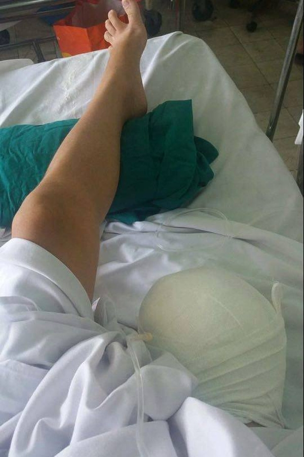 Thiếu nữ đã phải cắt bỏ 1/3 chân phải.