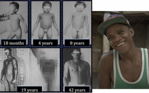 """Quá trình phát triển của bệnh """"tự chuyển giới"""". (Ảnh: BBC)"""