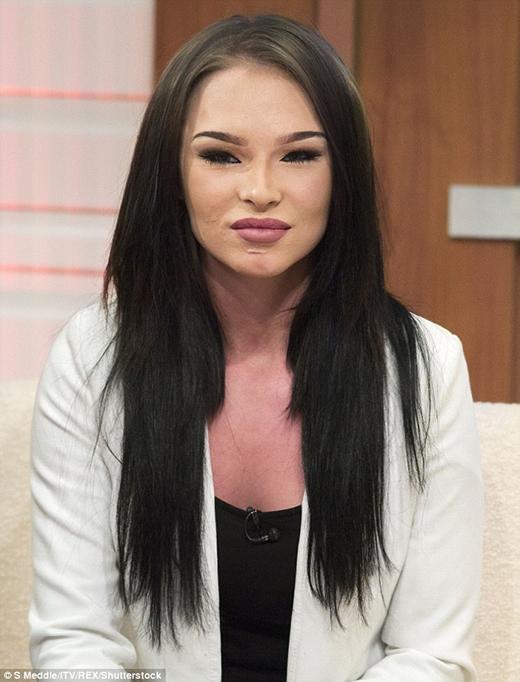 Khuôn mặt xinh đẹp của Chloe Thomson được tái tạo sau tai nạn xe hơi thảm khốc năm 11 tuổi. (Ảnh: Internet)