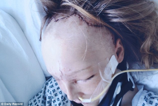 """Sau những cuộc phẫu thuật tái tạo khuôn mặt, Thomson phải chịu đựng nhiều năm trời bị kìthị vì ngoại hình """"khác người"""". (Ảnh: Internet)"""
