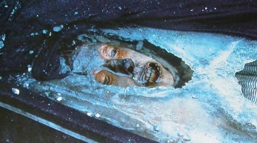 Mũi của Torrington ngả màu đen do tấm chăn len màu xanh mà những người chôn cất anh phủ lên. (Ảnh: Internet)