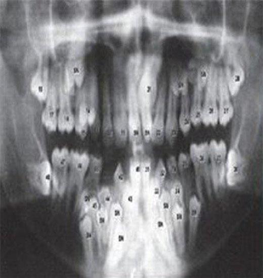Phim chụp X-quang vòm miệng chi chít răng của John. (Ảnh: Internet)