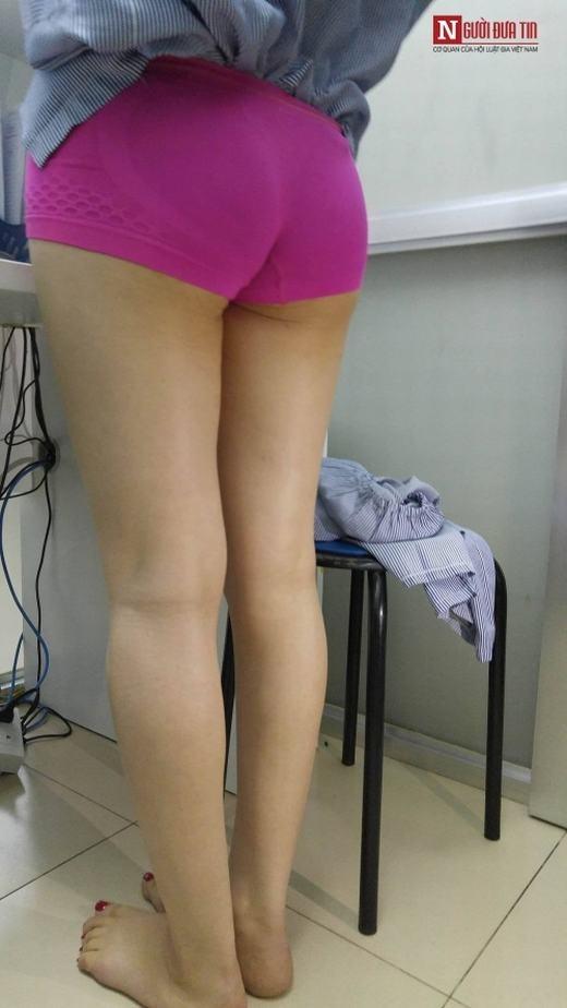 """Chị N. không hài lòng với đôi chân hơi vòng kiềng của mình nên tìm đến phẫu thuật độn bắp chân để bớt lộ. Chị cho biết: """"là phụ nữ ai cũng muốn mình có một đôi chân dài và đẹp vì vậy mới tìm cách can thiệp bằng y học"""""""