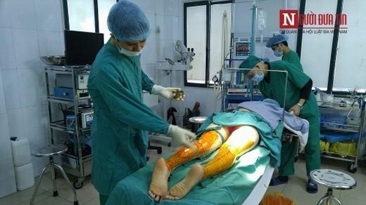 Sau đó là bôi thuốc tê lên toàn bộ phần bắp chân phẫu thuật