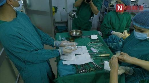 """Cận cảnh túi silicon sẽ được đưa vào bắp chân bệnh nhân. Bác sĩ Thanh cho biết: """"Tuổi thọ của túi silicon này rất lâu và an toàn, kéo dài tới vài chục năm mà không cần phải thay thế""""."""