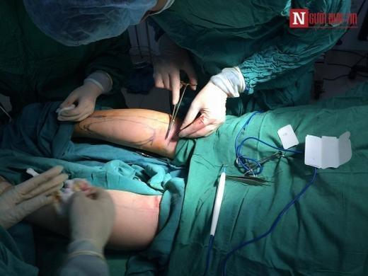 Bác sĩ Thanh cho biết, những vết khâu bên trong sẽ tự tiêu chỉ sau 6 tháng, còn vết khâu bên ngoài sẽ tiến hành rút chỉ sau 10 ngày.