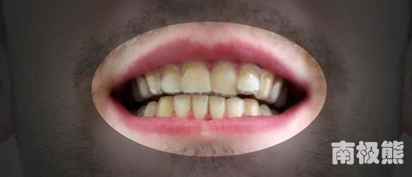 Khi Amos Dudley đeo miếng niềng răng trong. (Ảnh: Internet)