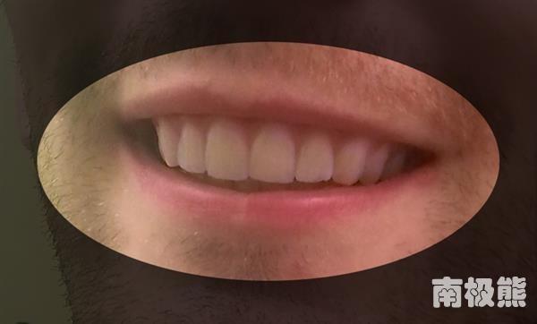 Sau khi tháo miếng niềng răng. (Ảnh: Internet)