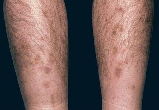 Bắp chân anh có những đốm đen lạ. (Ảnh minh họa. Nguồn: Internet)