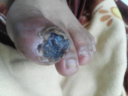 Riêng ngón chân cái của anh đã bị hoại tử. (Ảnh minh họa. Nguồn: Internet)