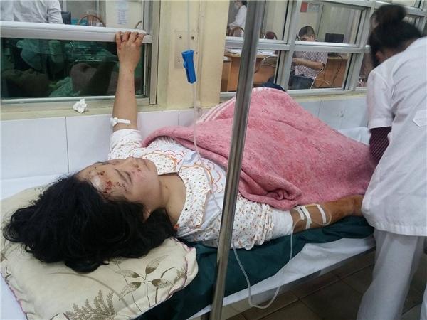 Một nạn nhân của vụ nổ kinh hoàng đang được cấp cứu tại bệnh viện. Ảnh: Internet