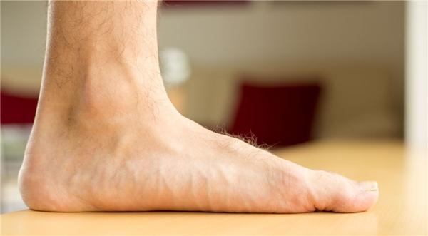Hình ảnh một bàn chân hầu như không có hõm chân.(Ảnh: Internet)