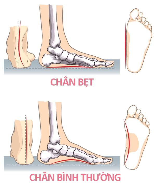 Sự khác nhau giữa bàn chân số sướng và số khổ.(Ảnh: Internet)