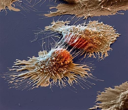 """""""Chân dung"""" tế bào ung thư dưới kính hiển vi. (Ảnh: Internet)"""